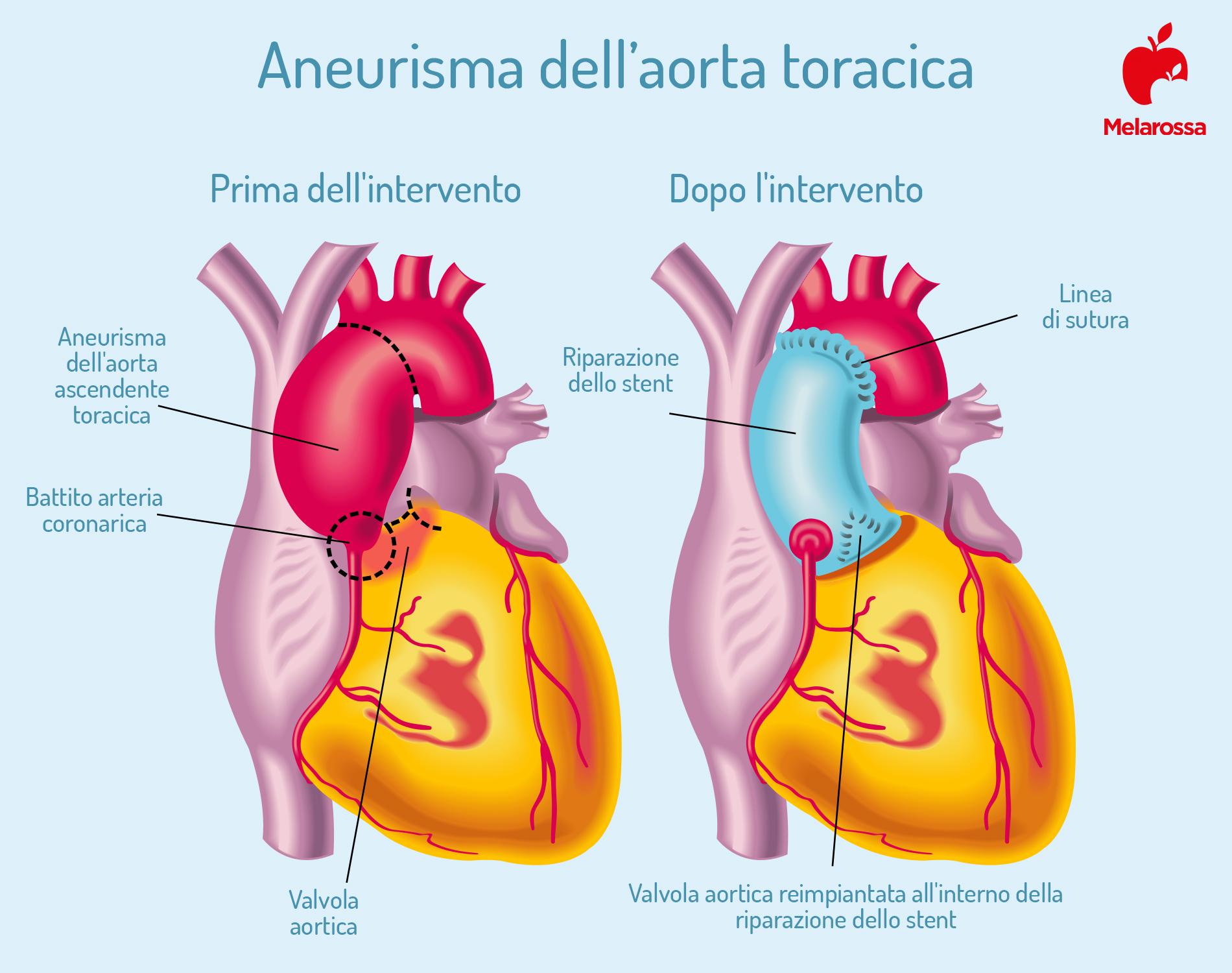 aneurisma aorta addominale prima e dopo intervento
