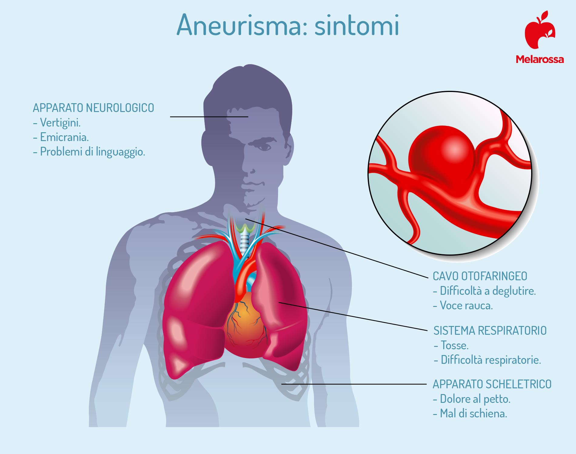 i sintomi dell'aneurisma