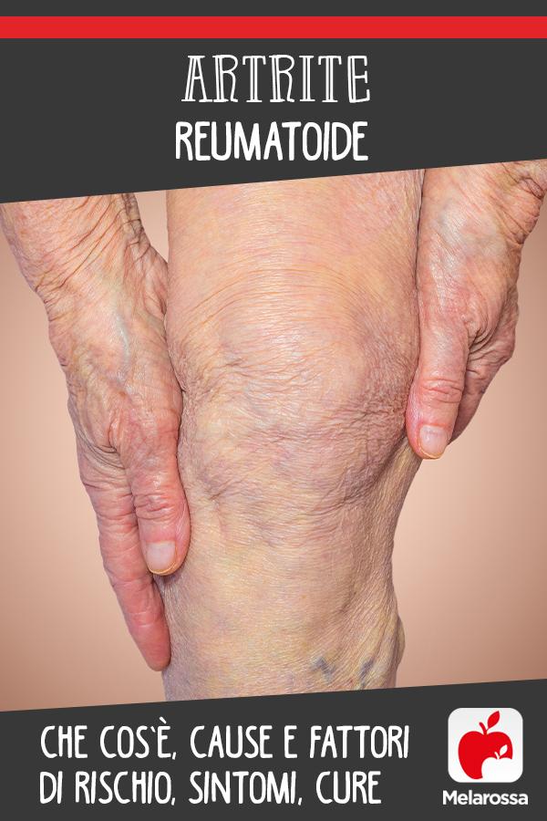 artrite reumatoide: cos'è, cause, sintomi, cure