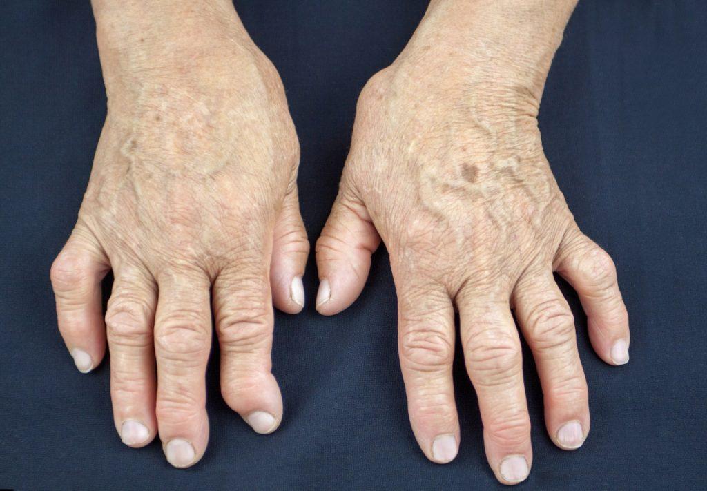 artrite reumatoide e artrosi: differenze
