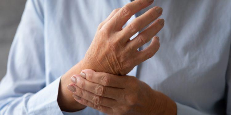 artrite reumatoide: cos'è, cause, sintomi e cure