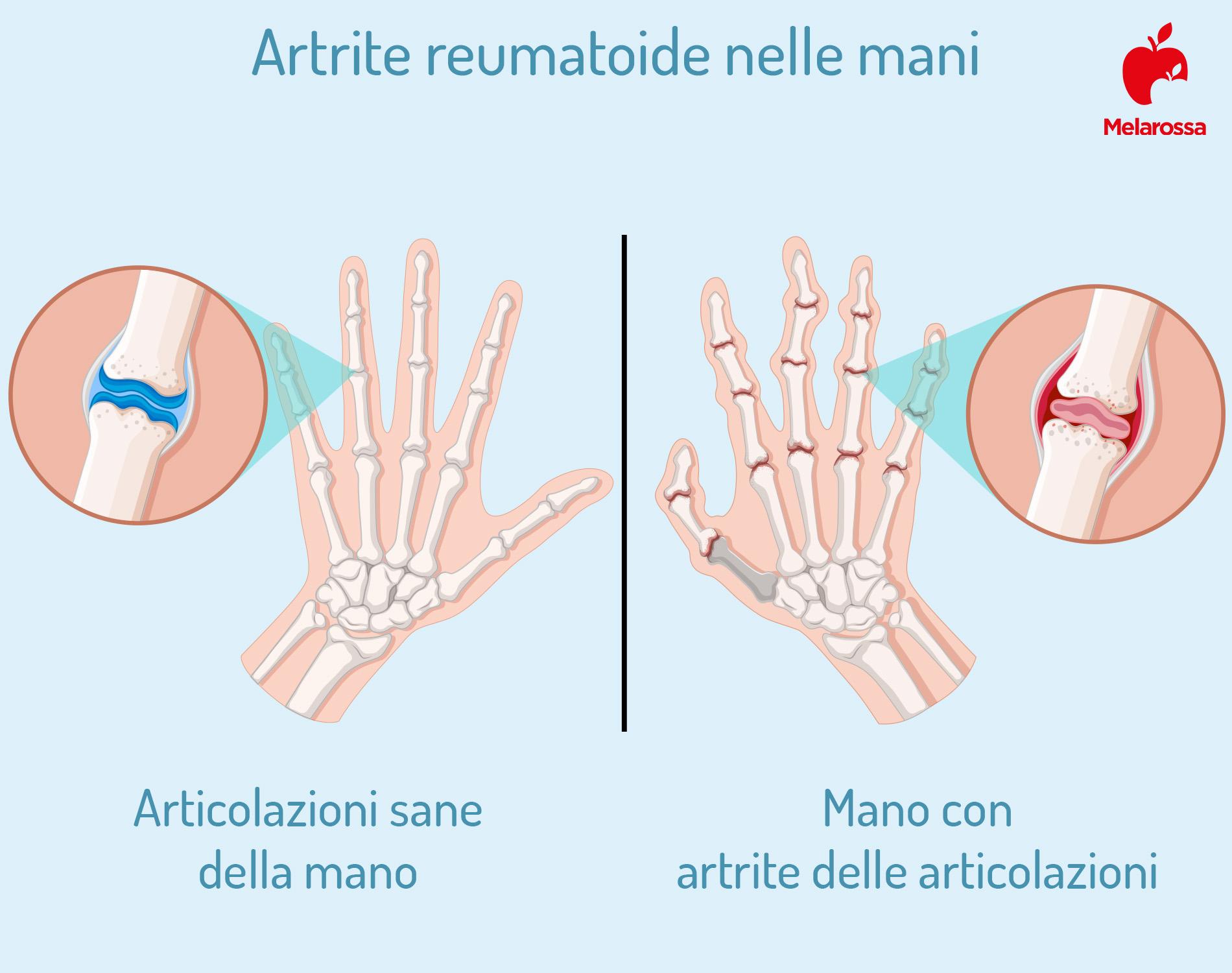 artrite reumatoide: mani