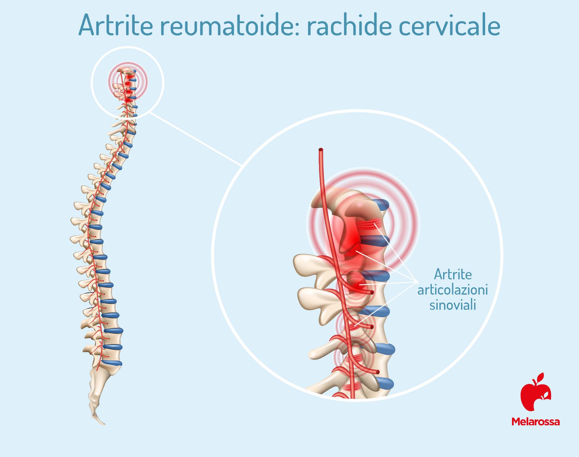 Artrite reumatoide: rachide cervicale