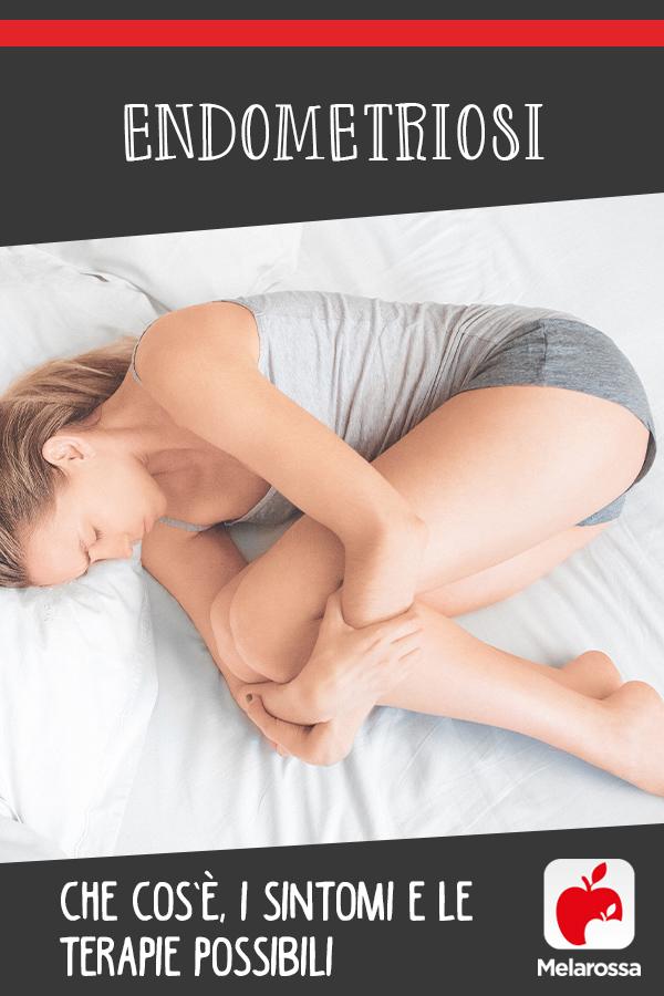 Endometriosi: cos'è, cause, sintomi e cure