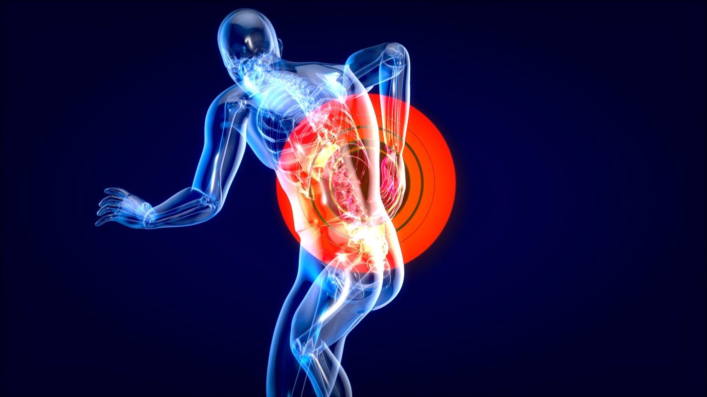 le cause della fibromialgia