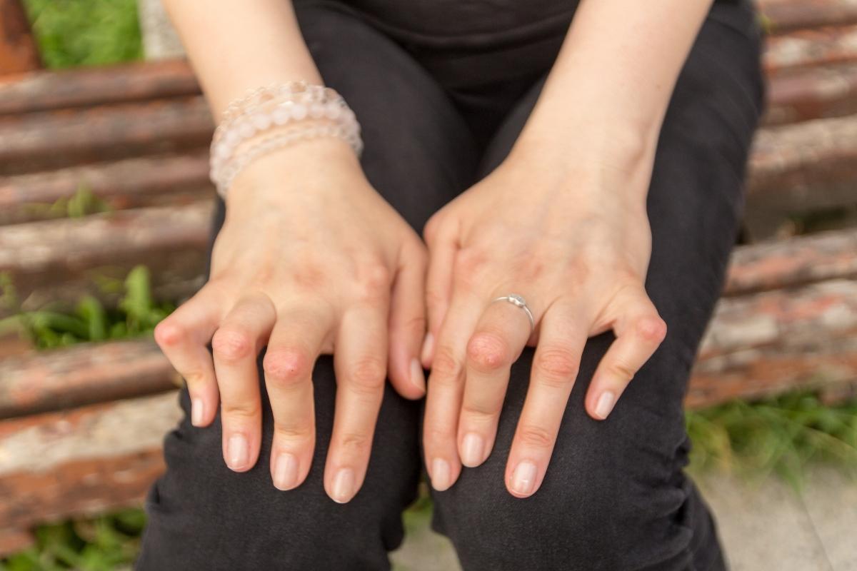 fibromialgia e artrite reumatoide
