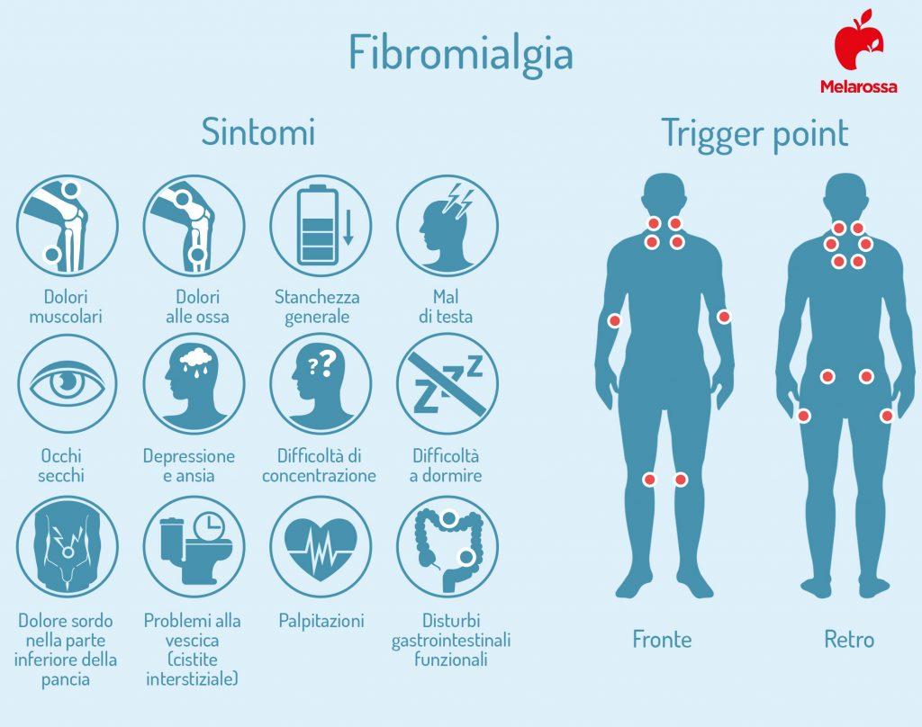 fibromialgia: sintomi e trigger point