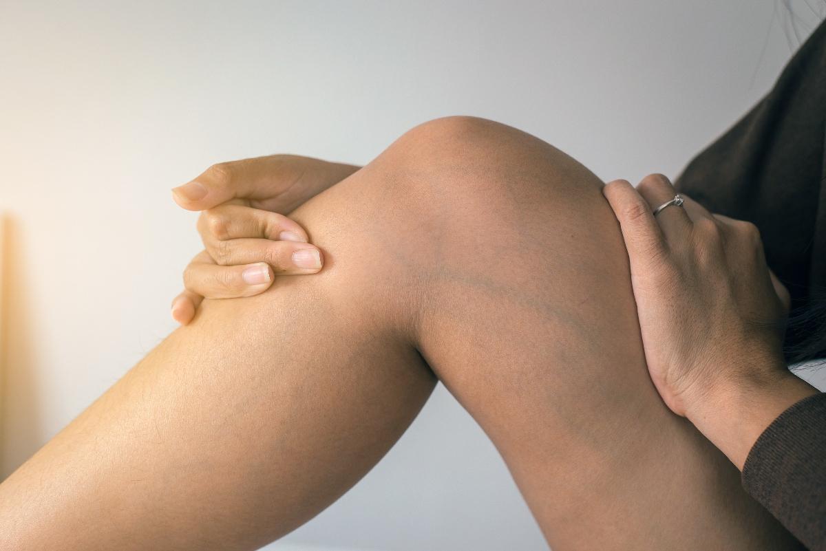 insufficienza venosa cronica: sintomi