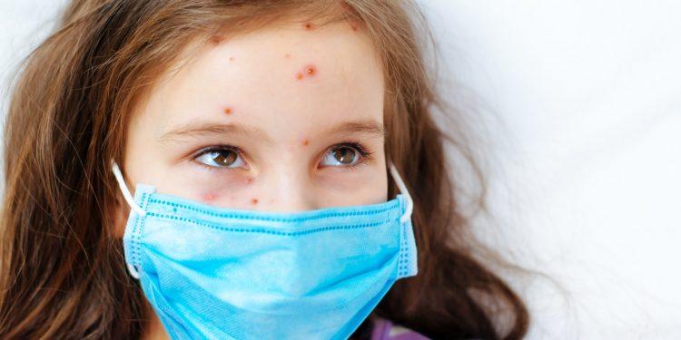 malattie esantematiche: quali sono , come riconoscerle e vaccini