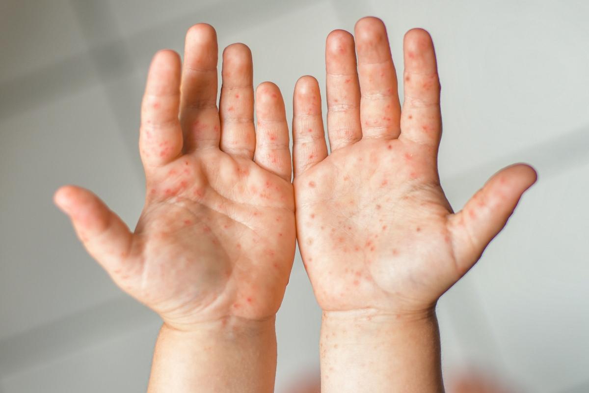 mani-piedi-bocca: sintomi della malattia