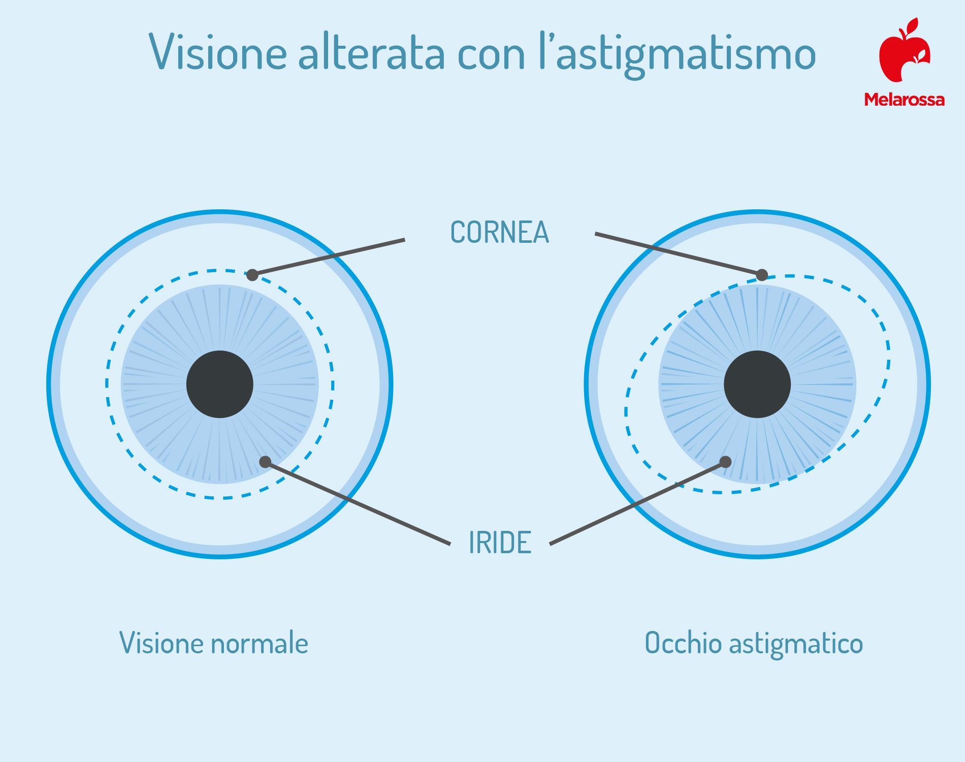 astigmatismo: visione alterata