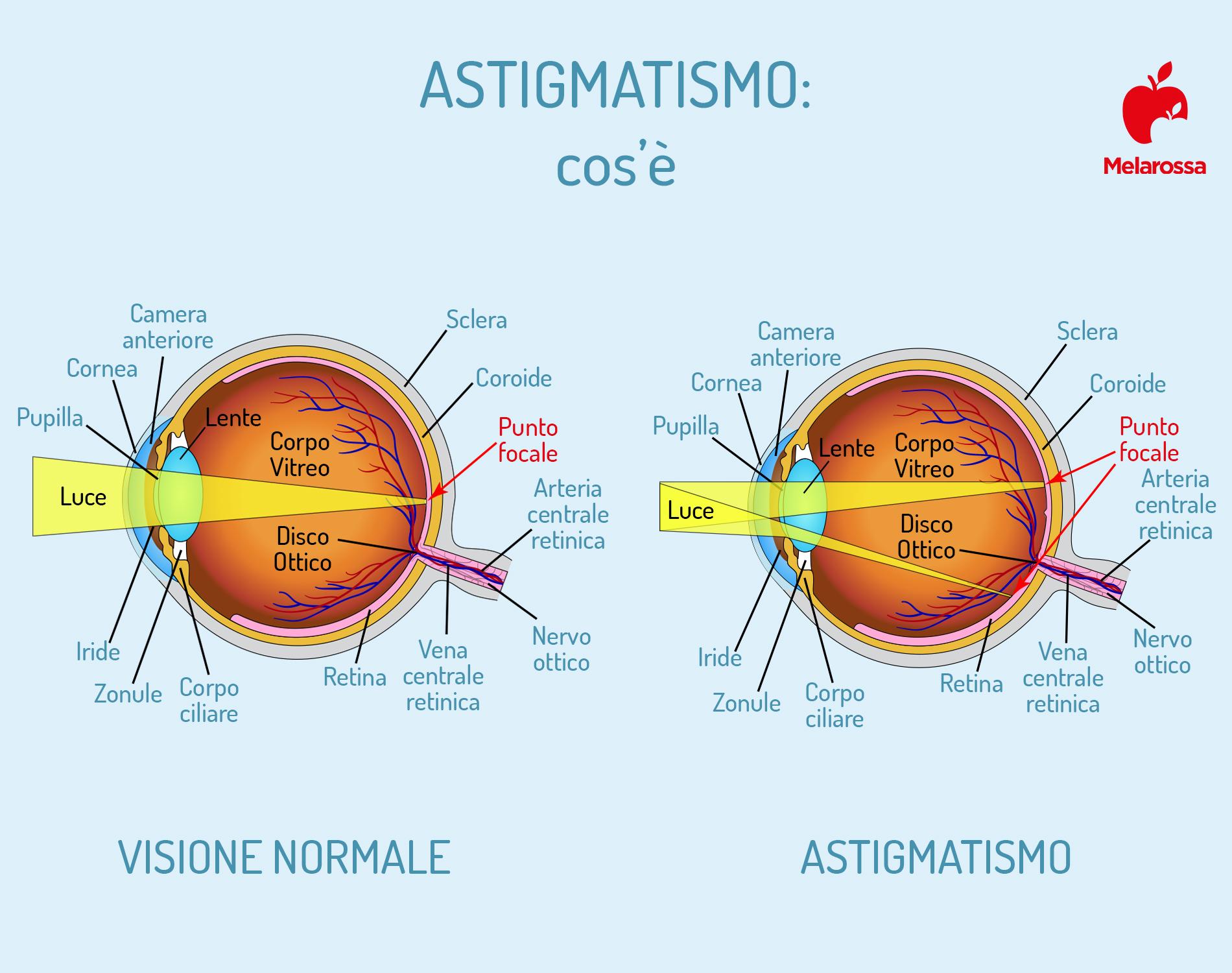 astigmatismo: anatomia dell'occhio