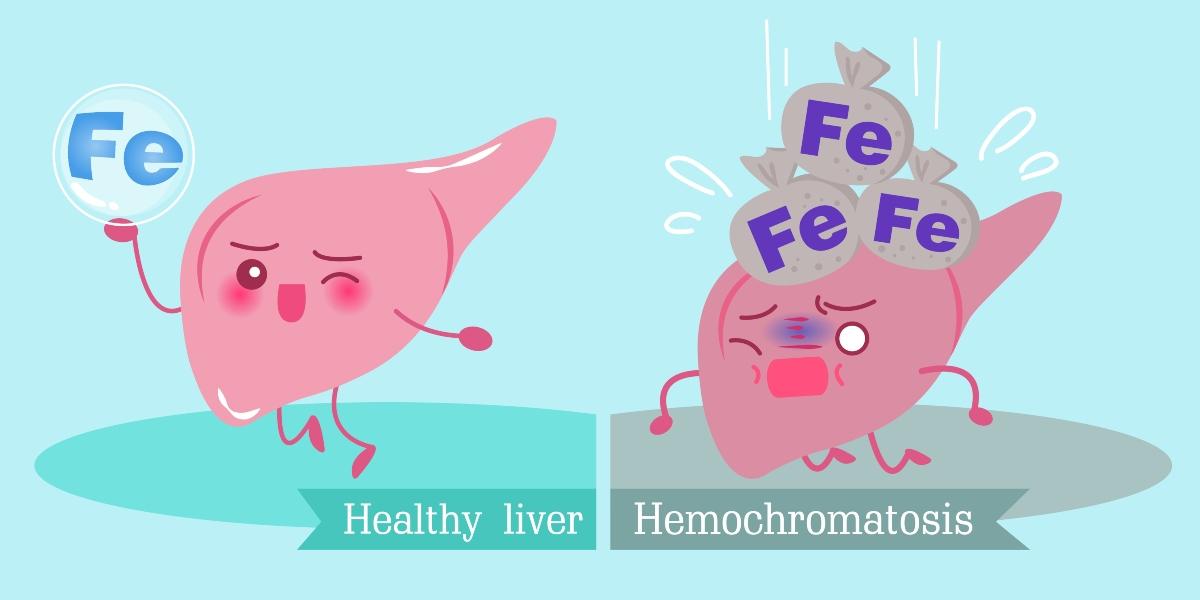 emocromatosi: eccesso di ferro nel sangue