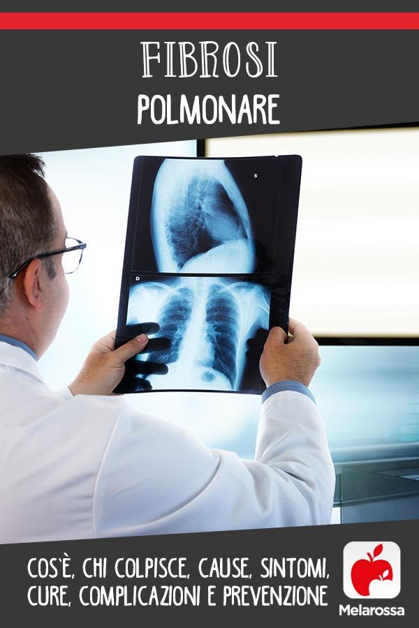 fibrosi polmonare: cos'è, cause, sintomi, cura e prevenzione