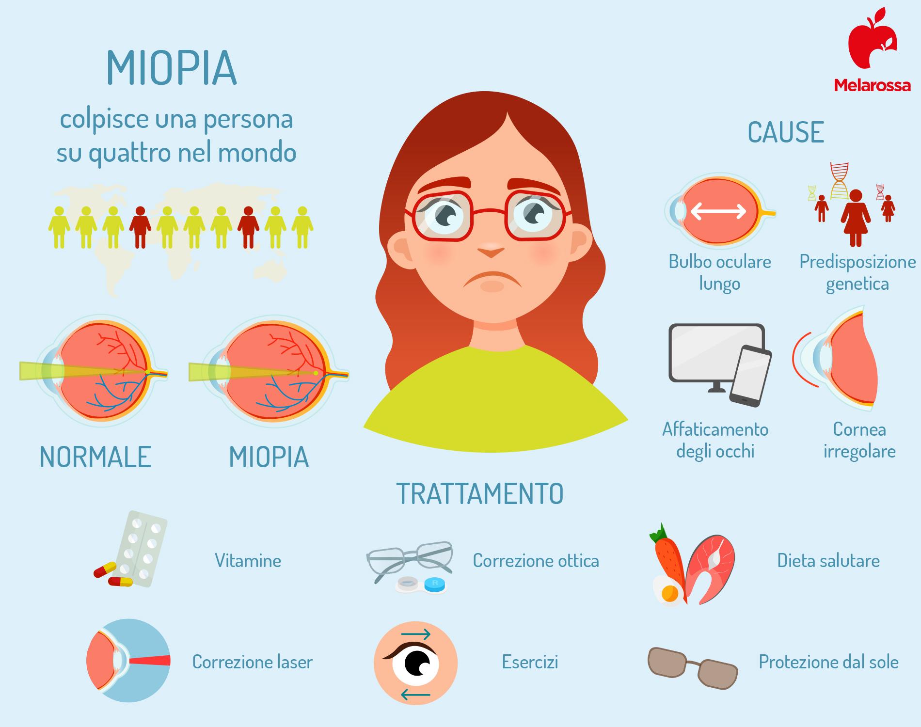 miopia: cause e trattamenti