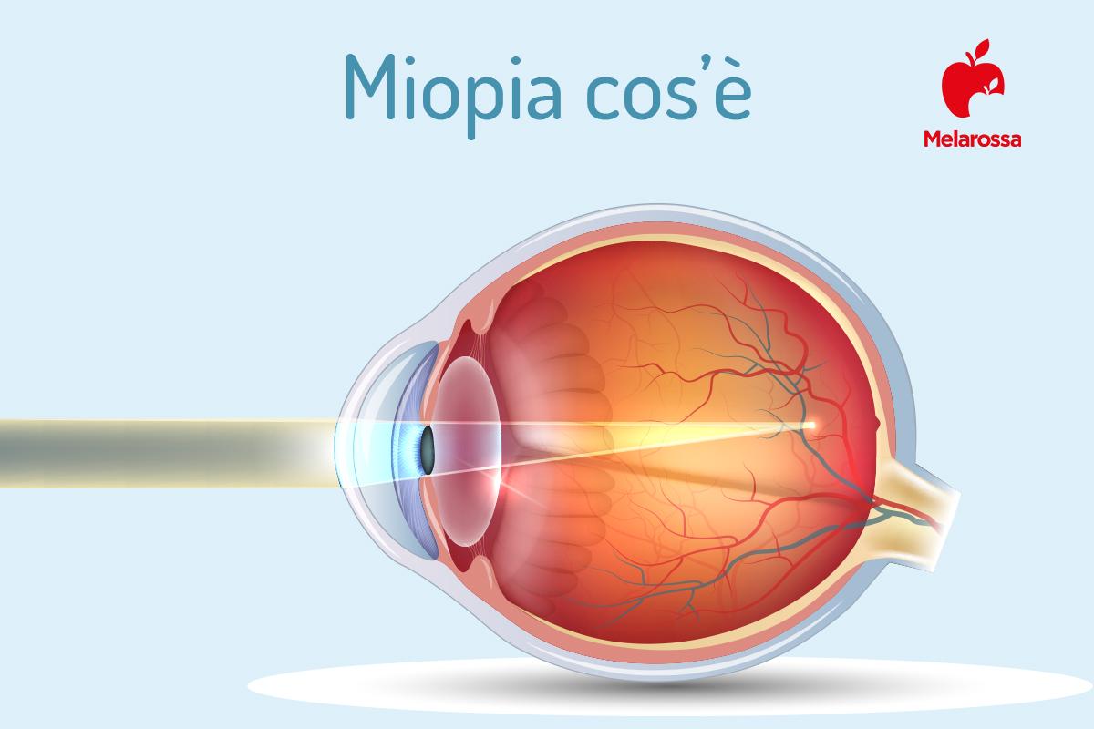 miopia: cos'è