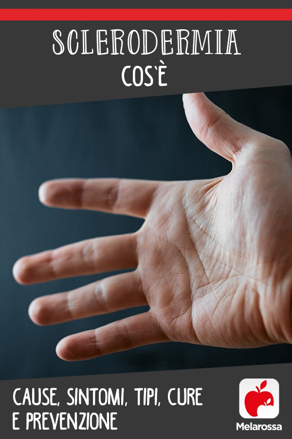 sclerodermia: cos'è, cause, sintomi, cure e prevenzione