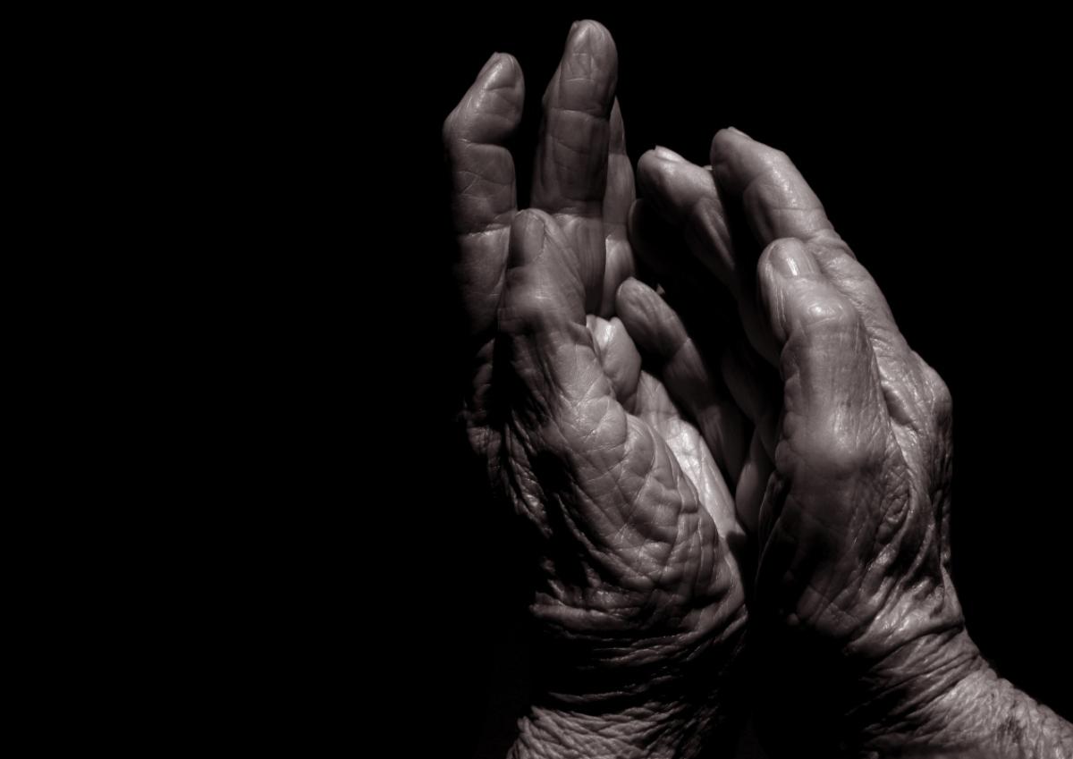 sclerodermia: decorso