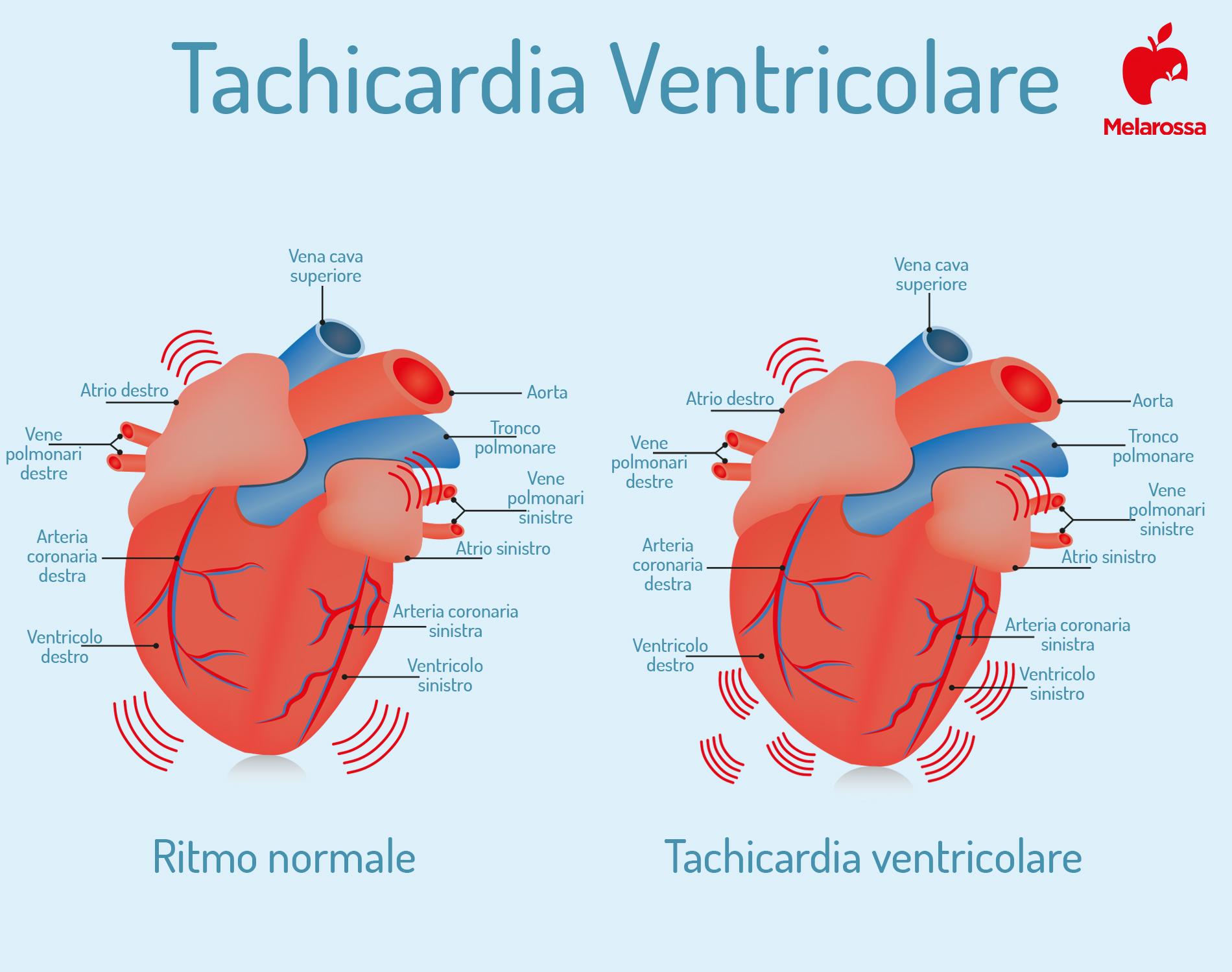 tachicardia ventricolare: che cos'è