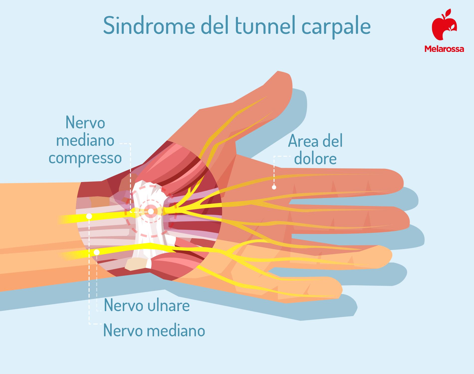 sindrome del tunnel carpale: che cos'è