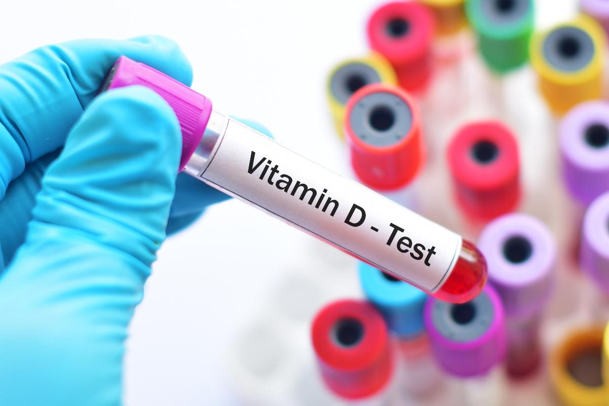 vitamina D: esame del sangue