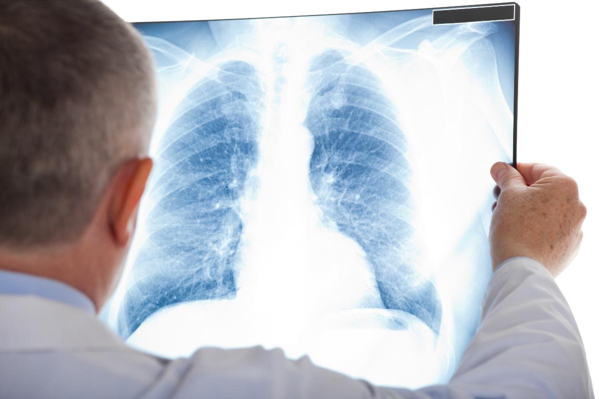 Bronchiectasie: diagnosi