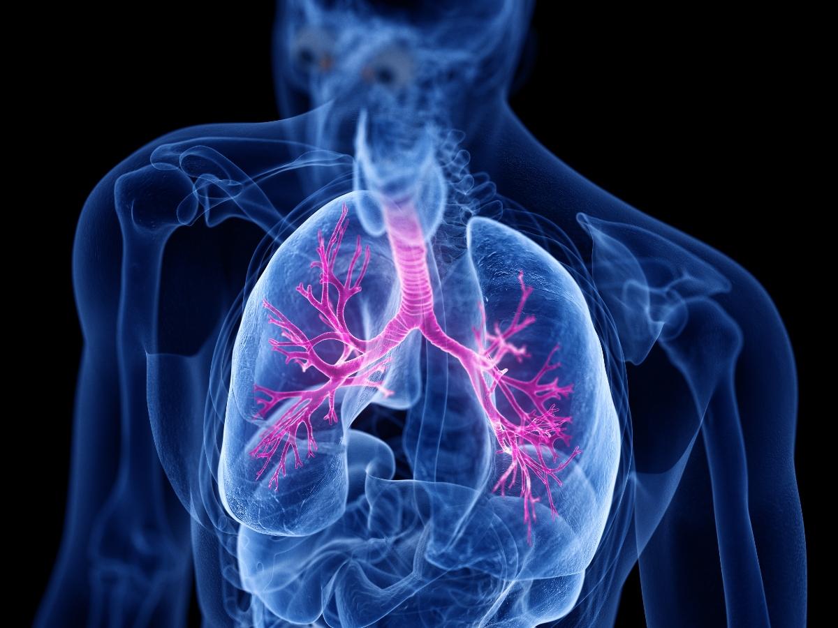 Bronchiectasie: evoluzione della malattia