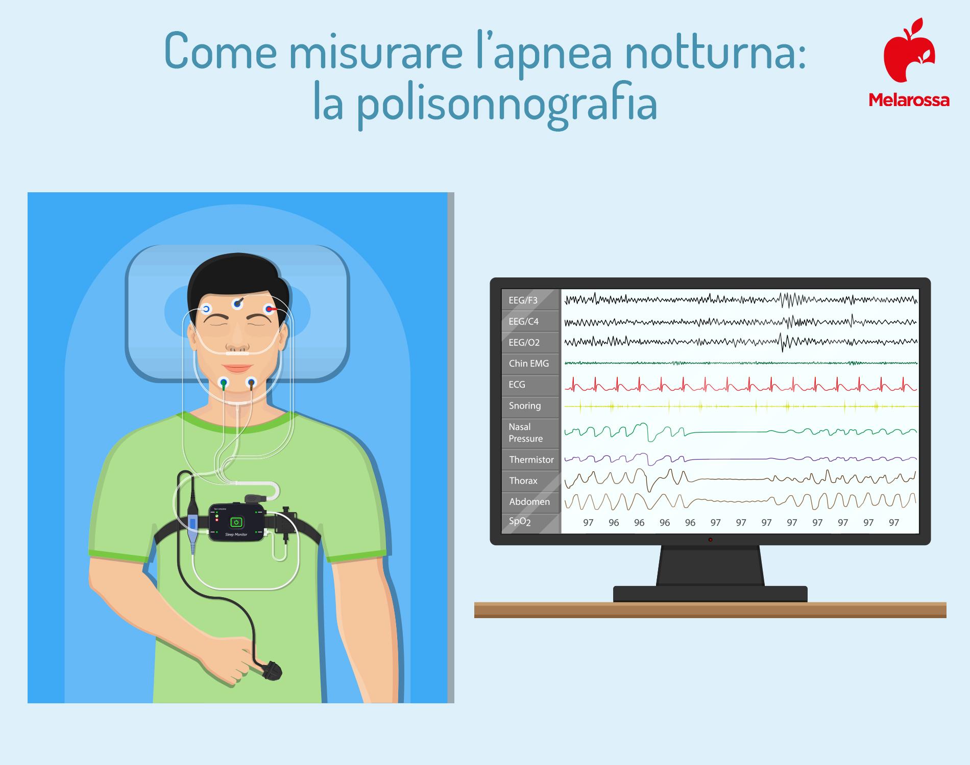 apnea notturna: polisonnografia