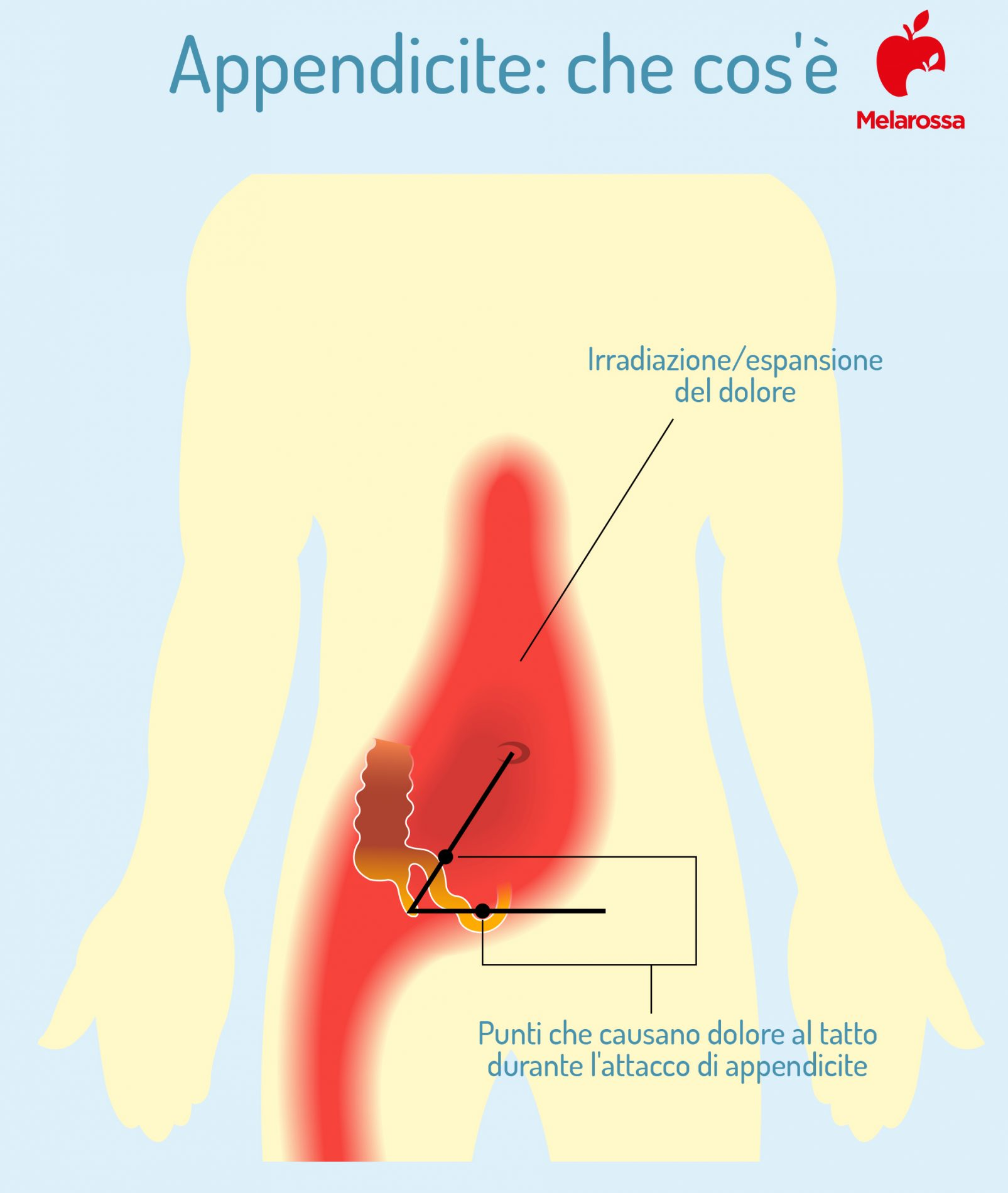 appendicite: cos'è