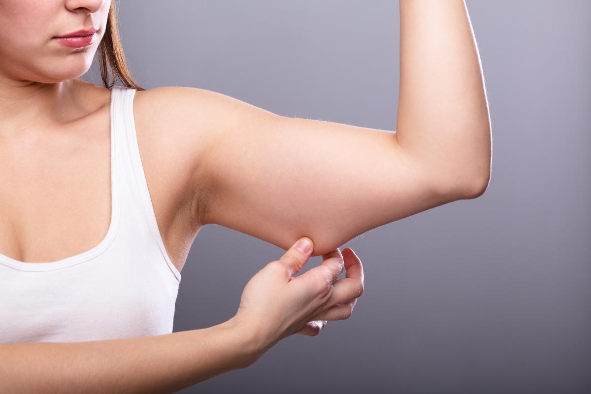 braccia a tendina: trattamenti estetici