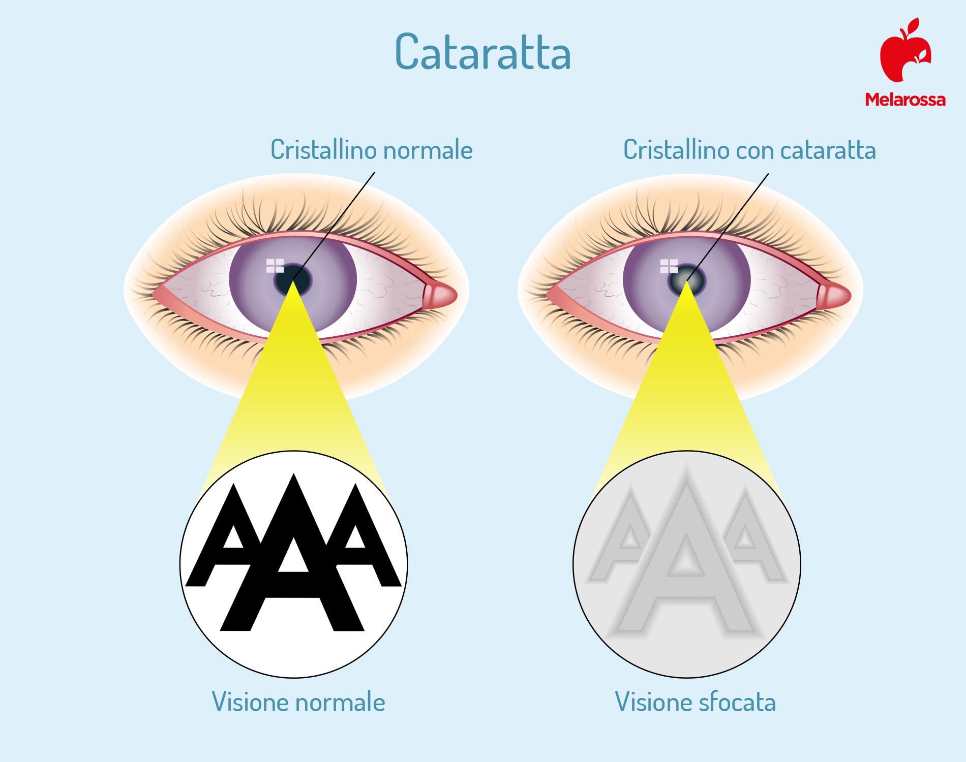 cataratta: cosa succede all'occhio