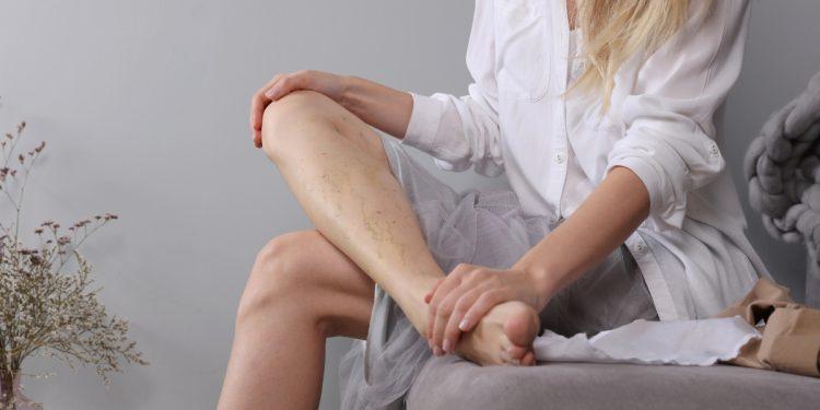 gambe gonfie: cause, sintomi , rimedi, esercizi e quando rivolgersi al medico