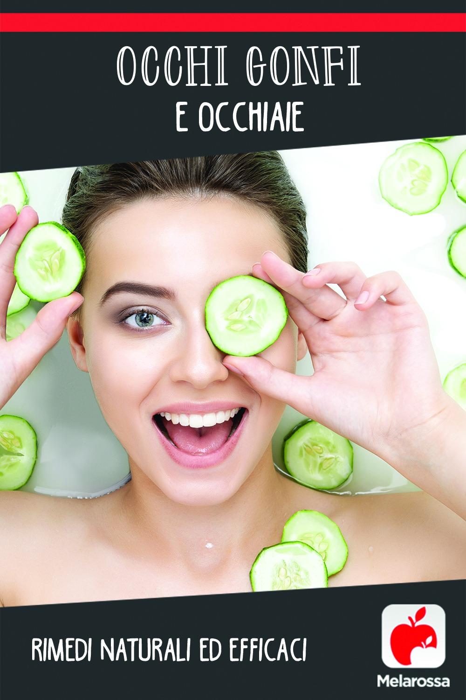 occhi gonfi e occhiaie: rimedi naturali e efficaci