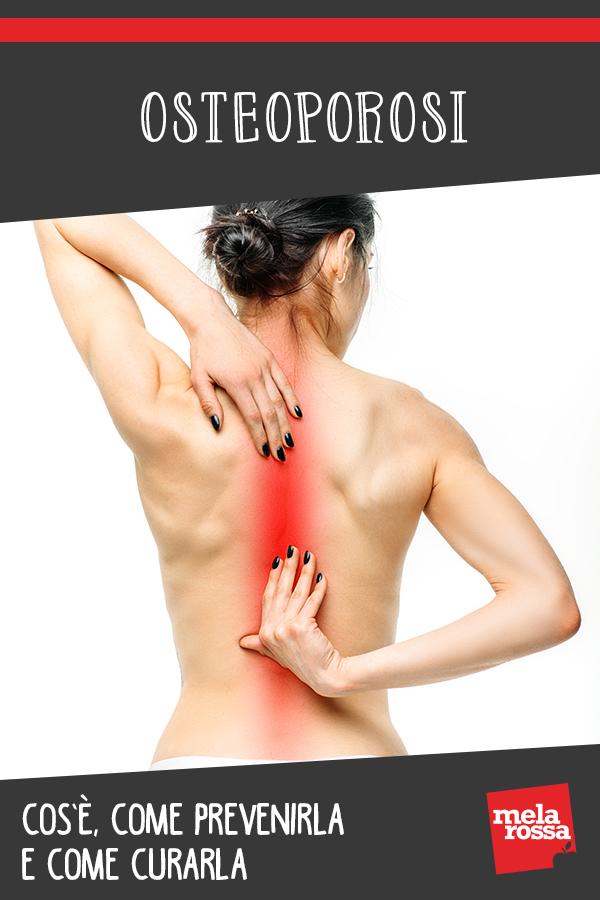 osteoporosi: cos'è, cause, sintomi e cure