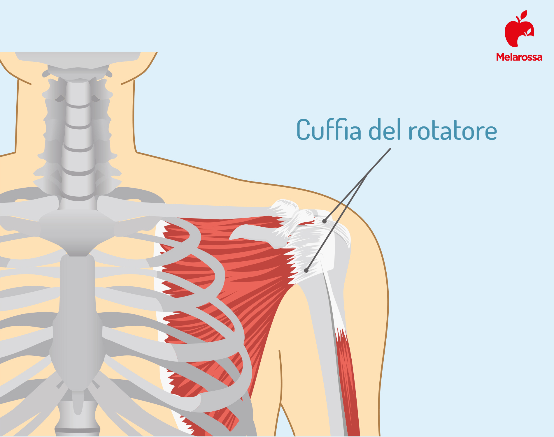 tendinite: rotatore della cuffia
