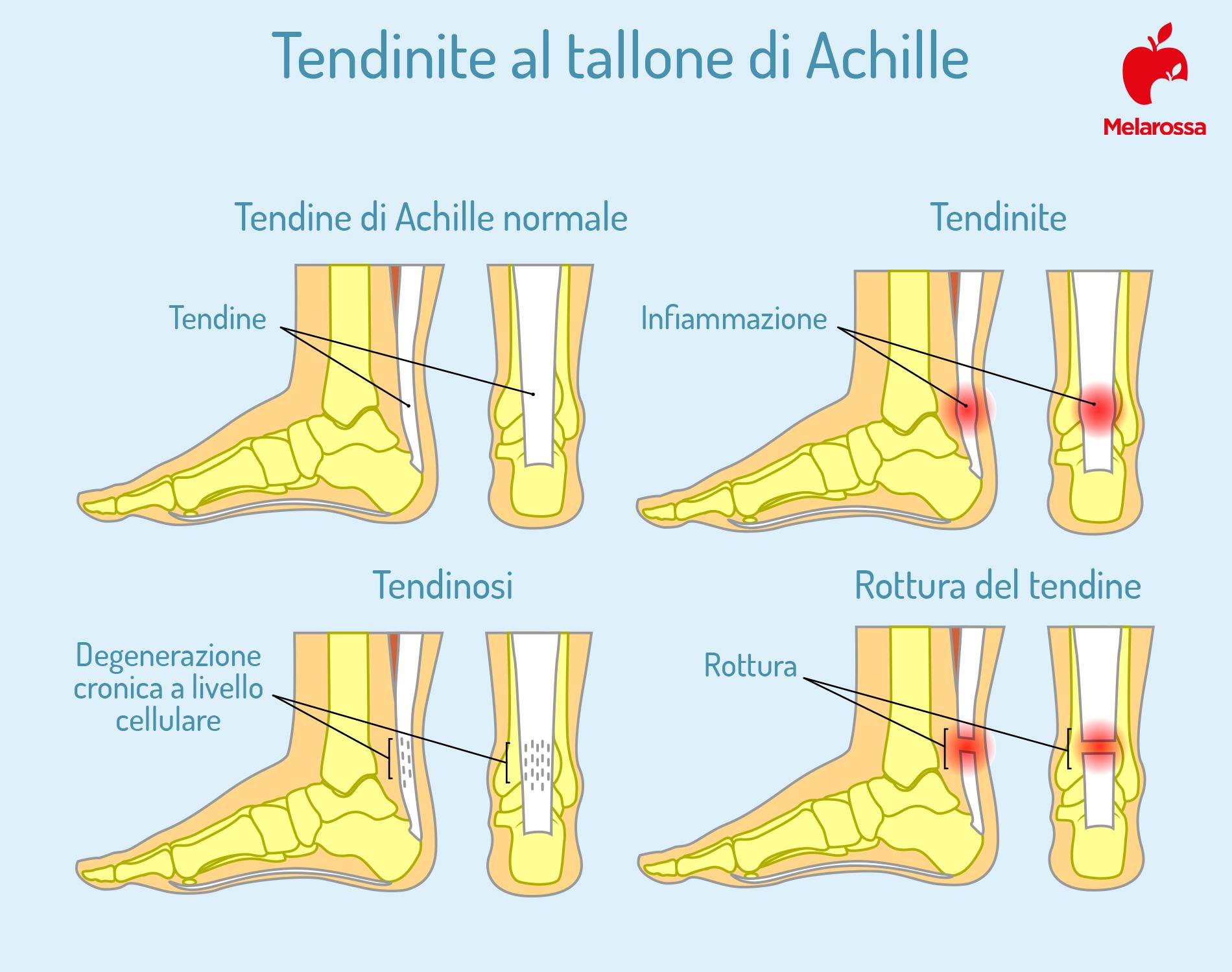 tendinite al tallone di Achille: cause e sintomi