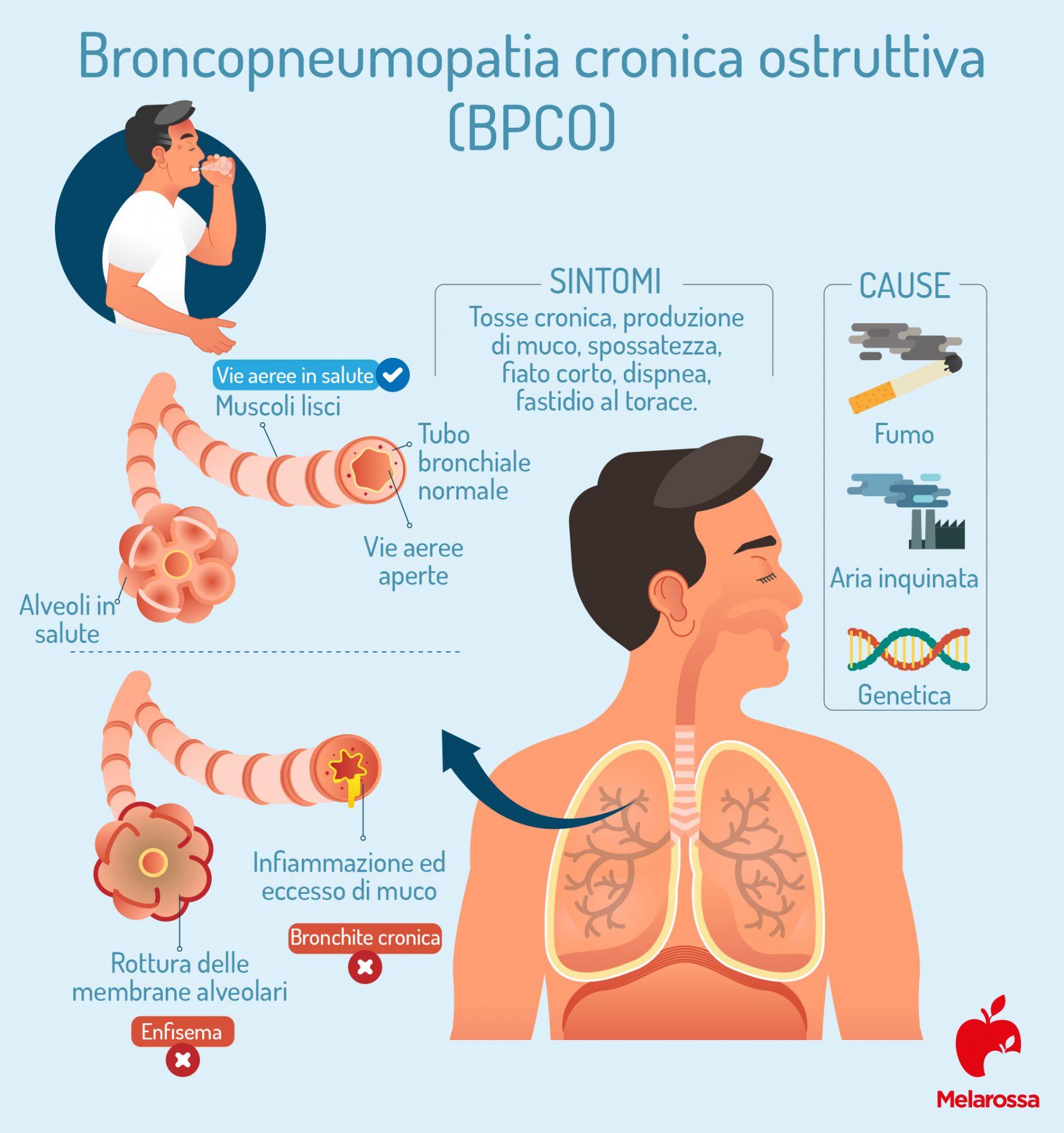 Broncopneumopatia cronica ostruttiva: cause e sintomi