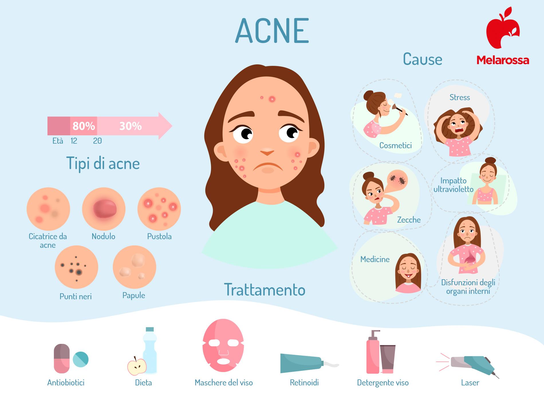 acne: cause, sintomi e cure- infografica