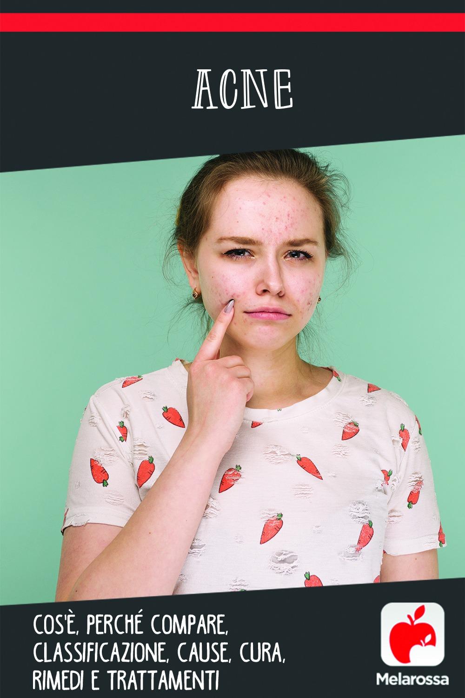 acne: cause, sintomi, tipi, cure e prevenzione