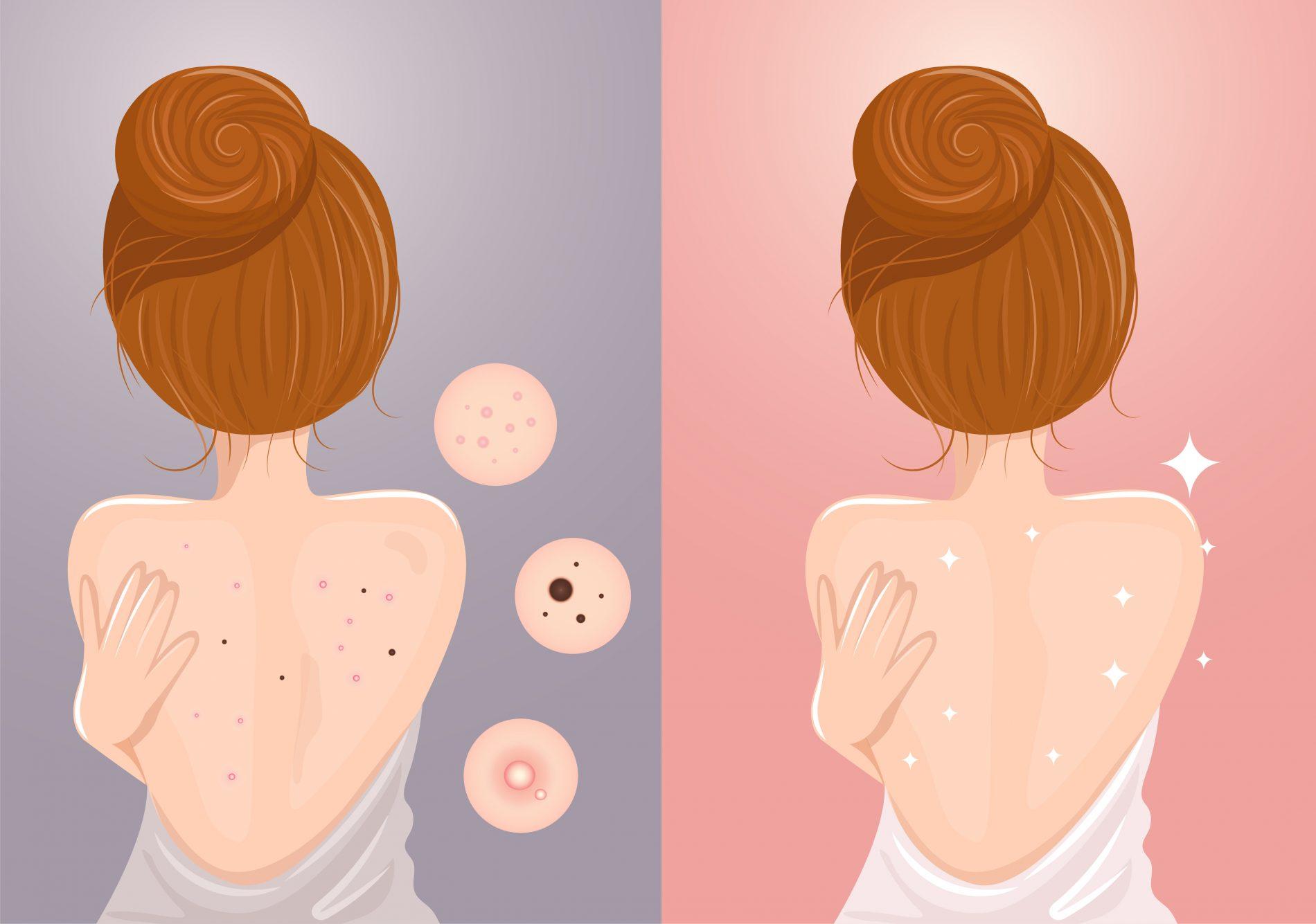 acne: cause