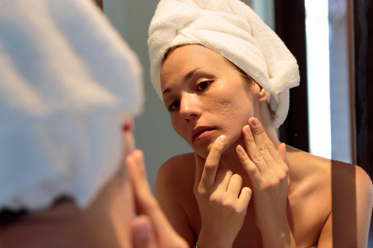 acne: cos'è, tipi, cause, sintomi, cure e trattamenti