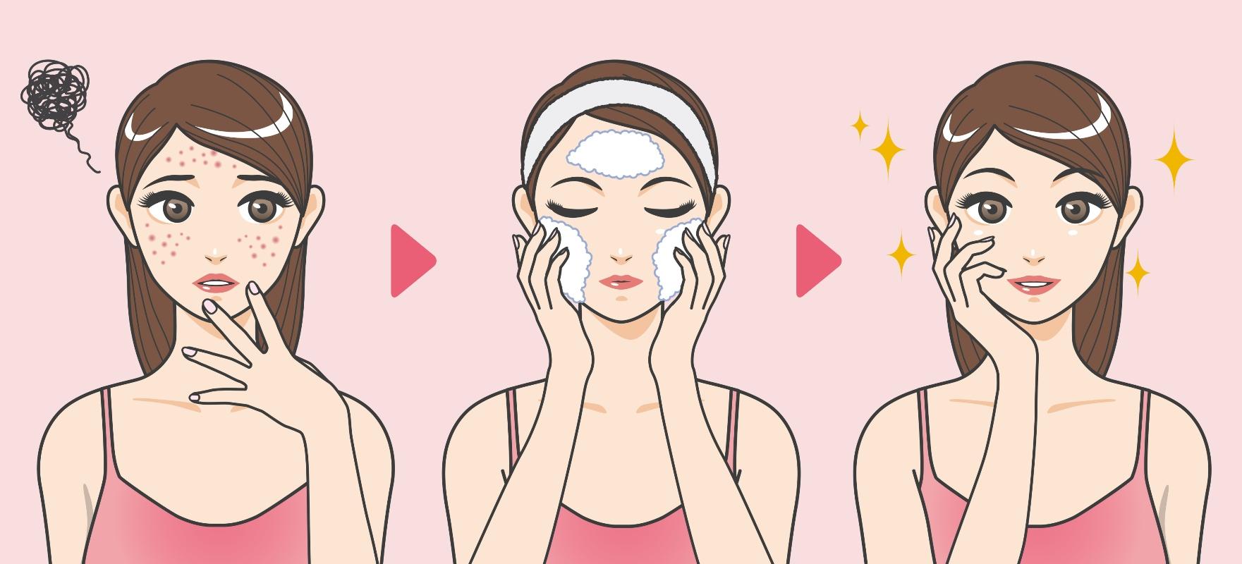 acne: cure e pulizia del viso