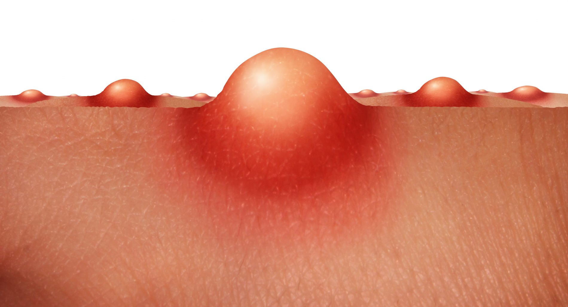 acne: pelle