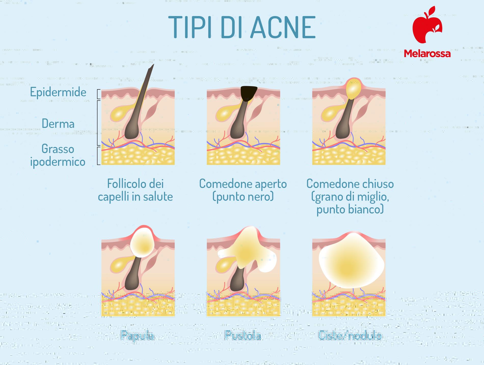 acne: tipi