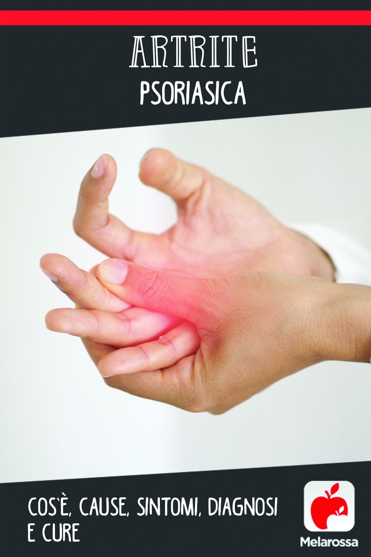 artrite psoriasica: cos'è, cause, sintomi, cure