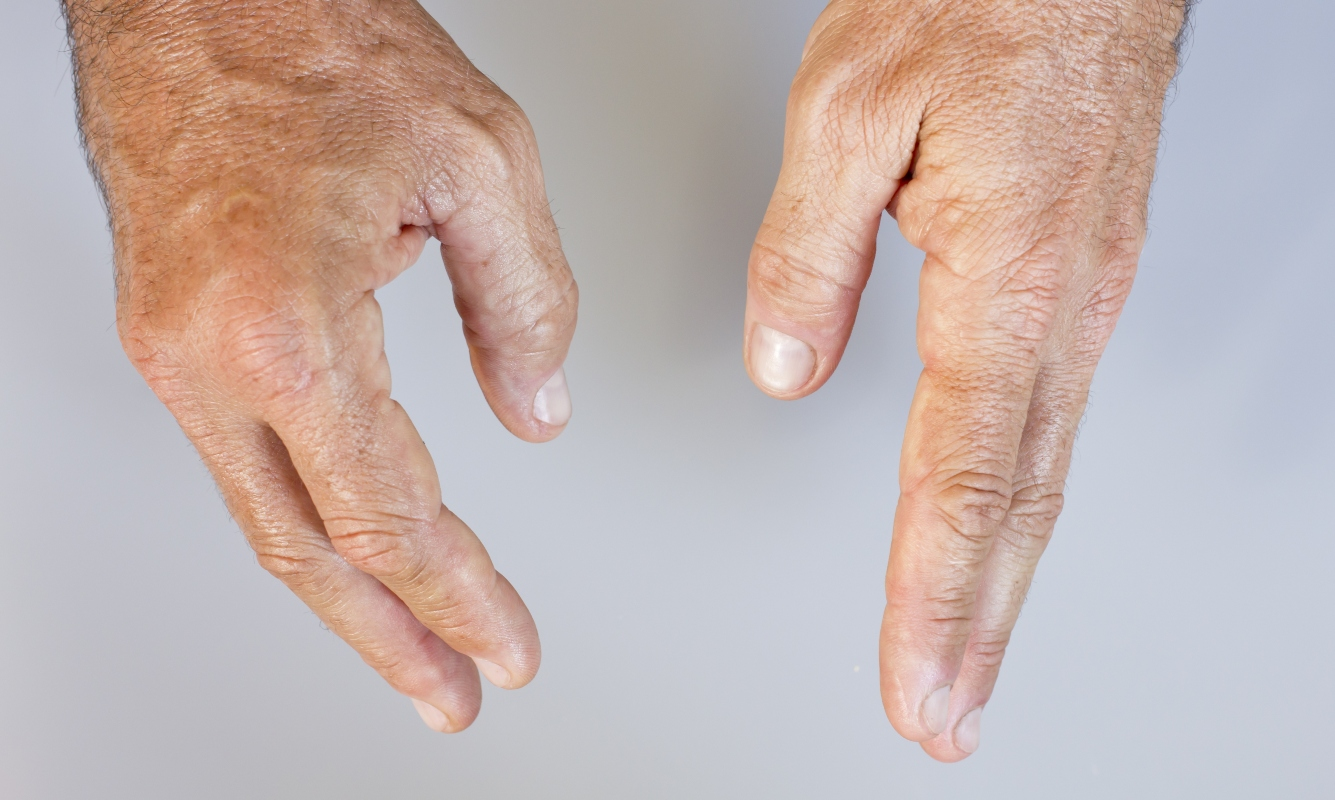 artrite psoriasica: dattilite