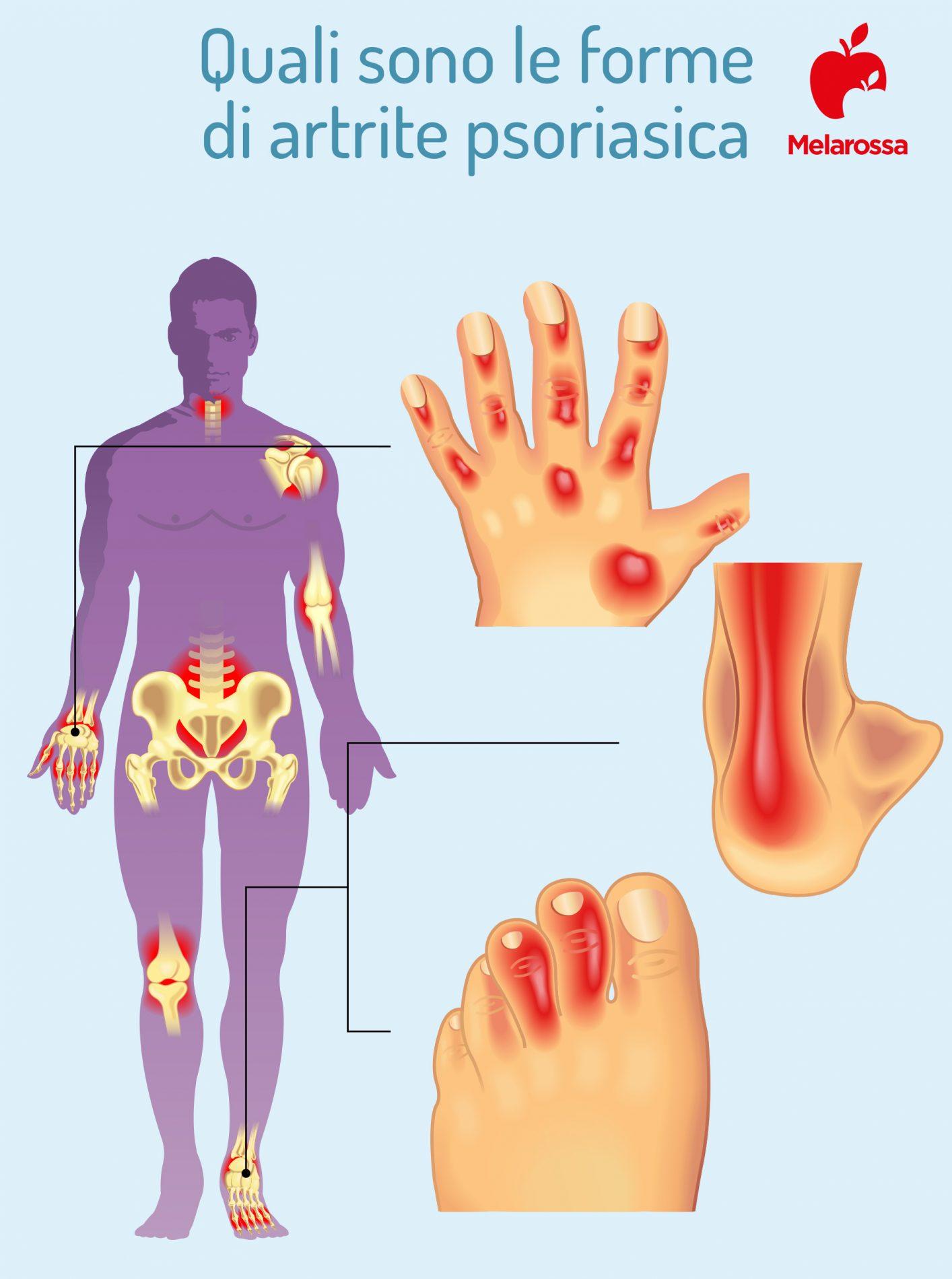 artrite psoriasica: forme