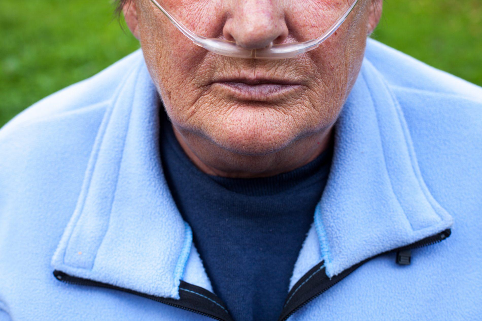 Broncopneumopatia cronica ostruttiva: consigli per vivere bene