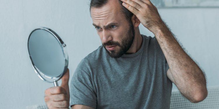 cibi, rimedi e casco laser contro la caduta dei capelli