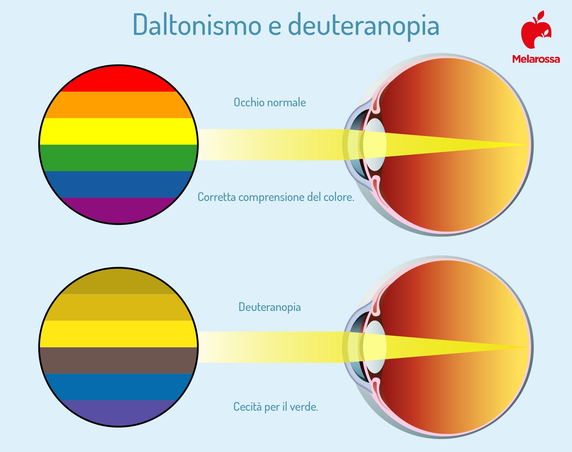 daltonismo e deuteranopia